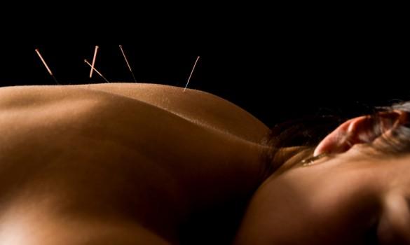 arizona chandler acupuncture