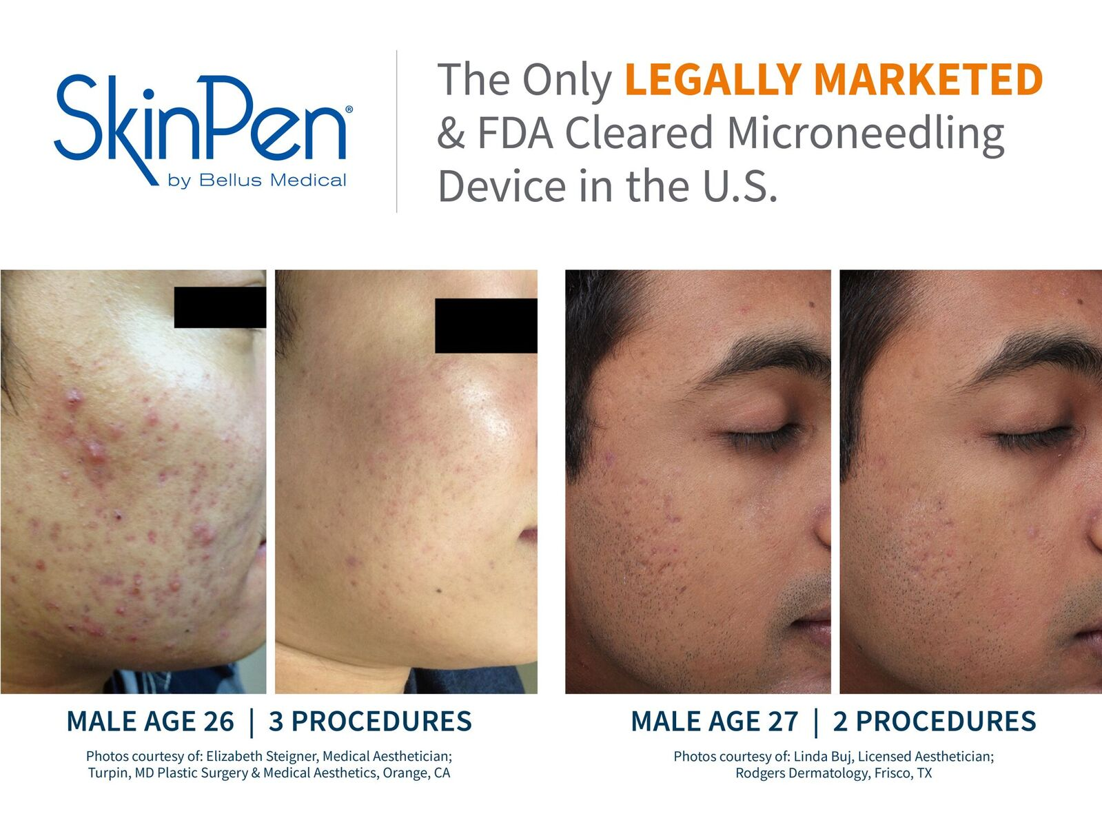 PRP Microneedling Facial Rejuvenation - Arizona Natural Medicine